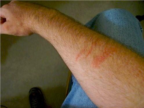 arm-troubles.jpg
